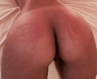 By request: my ass after a good spanking. [f]