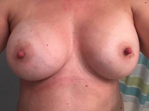 (f)or everyone who PMed me. Here is the bra off!