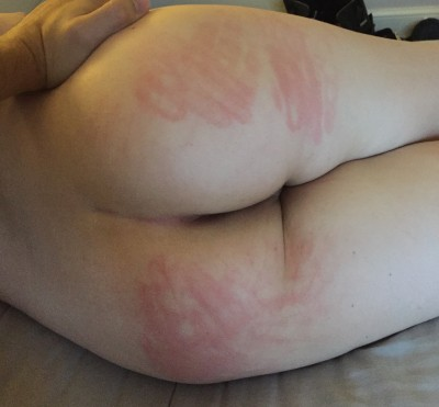 [F] My spanked ass