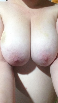 Snap I sent to show off the bruises my man left on my pale tits