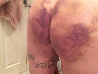 [f]ollow up: bruises from Tuesday's session have come out!