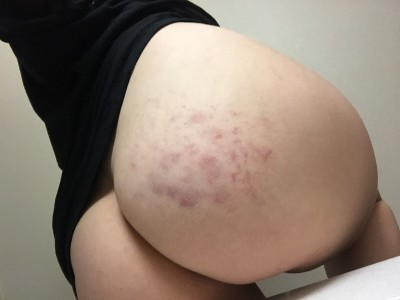 Any (f)ans of bruised butts here? I may be bias.