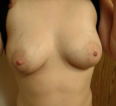 My wi[f]e's tits what do you think? Do you want to see more?