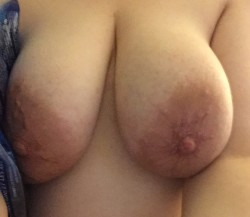 In bed with a fever. Here are my boobs. Don't mind the cold pack..