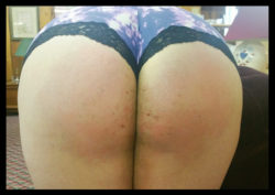 Daddy is working me up to bruises on my bum! Some are starting to show up