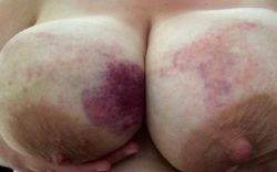 Last time by nipple were clamped...this time my breasts were beaten
