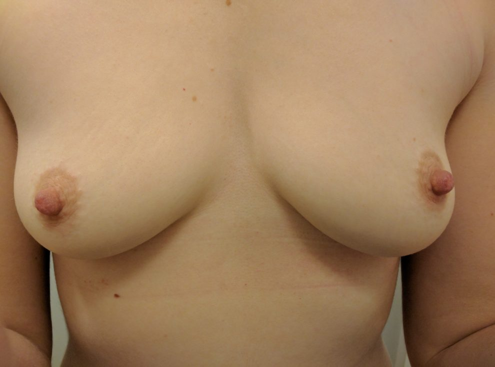 Went for a workout and my boobs got super squished in my sports bra. At least they are (f)ree now!