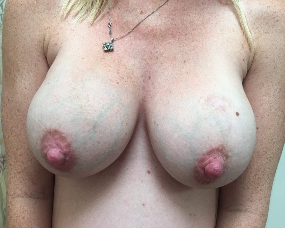 First post-wife's prego boobs